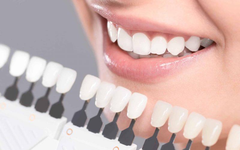 Professional Teeth Whitening Vs. Diy Whitening Kits