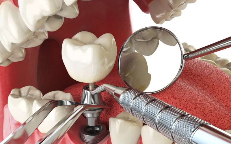 When Would Dental Implants Be Necessary?